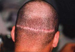 Hair Transplant Scar Still Pink After 6 Months