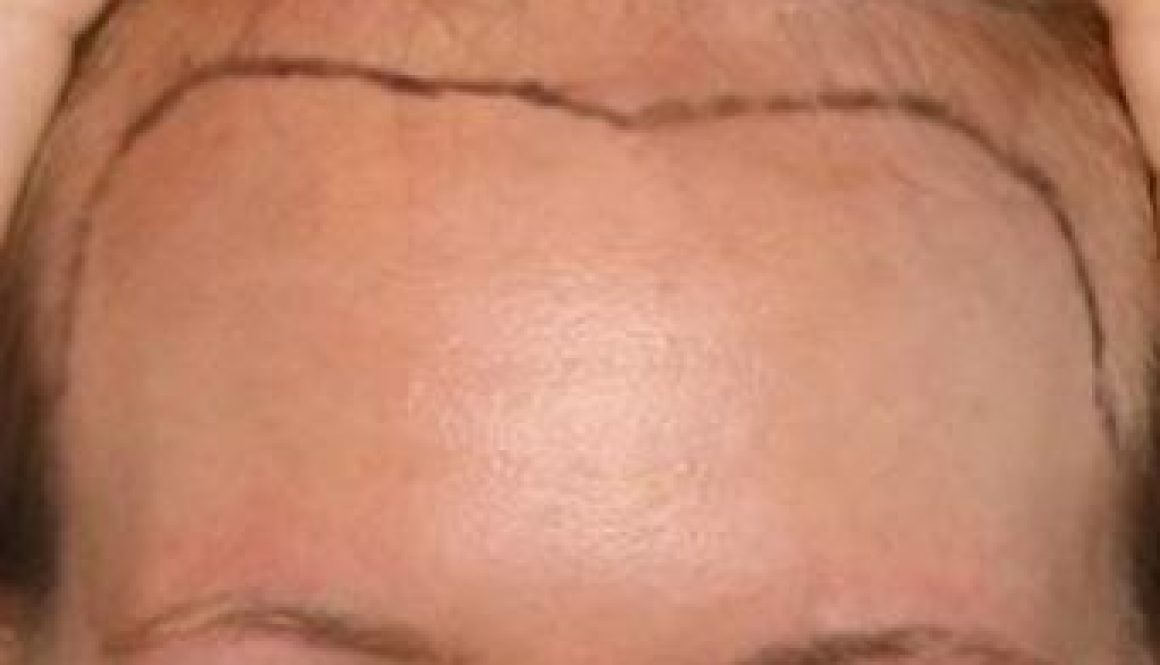 Lowering a Naturally High Female Hairline