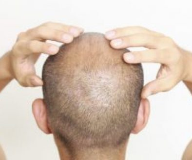 scalp-tightness-exercises