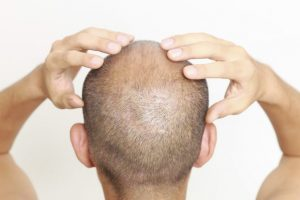 Scalp Tightness a Few Weeks After Hair Transplant Surgery