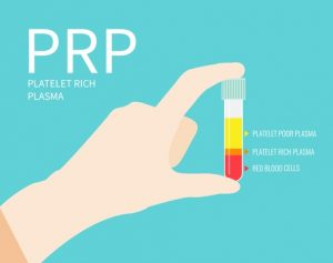 Is Platelet Rich Plasma (PRP) an Effective Hair Loss Treatment?