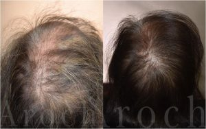 Treating Female Hair Loss with Platelet Rich Plasma (PRP) and Laser Therapy
