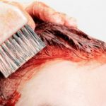 When Is It Safe to Color Hair after a Hair Transplant?