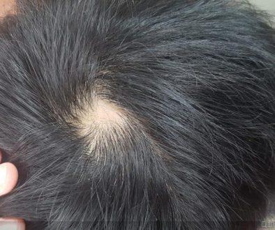 Teenage Hair Loss or Natural Crown Whorl?