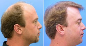 What is the Average Wait Time Between Hair Transplants?