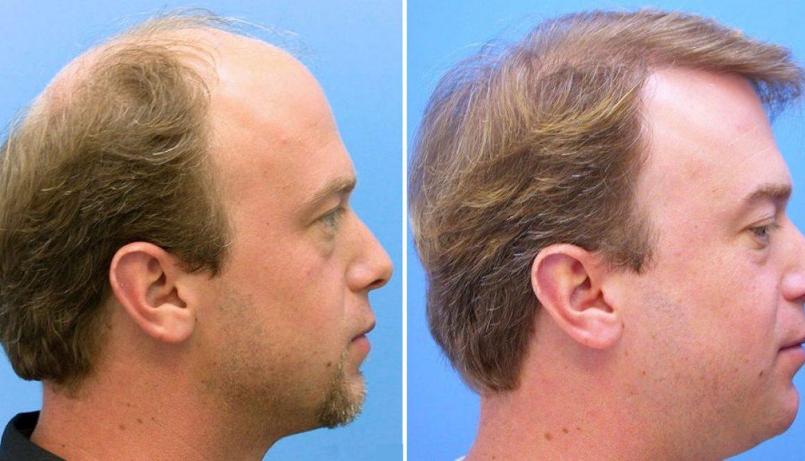 How Long to Wait in Between Hair Transplants?