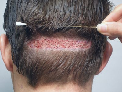 Is Doing 8000 Grafts with Follicular Unit Extraction (FUE) Possible and Realistic?
