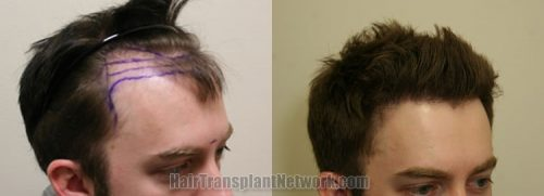 Deciding Between Density and Coverage with Hair Transplant Surgery