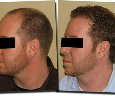 Are You a Candidate for Hair Transplant Surgery?
