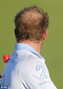 Can Prince Harry save his hair?