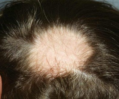 Can I Have A Hair Transplant To Treat Alopecia Areata?