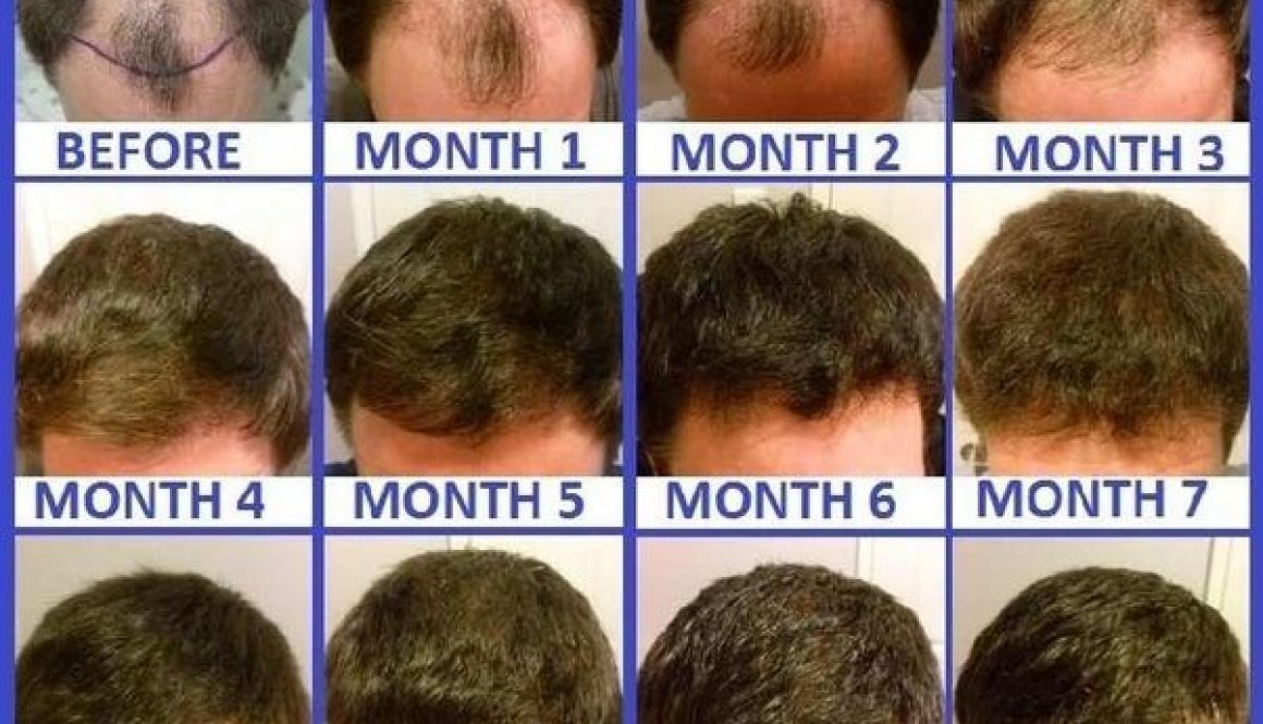 What Is The Process Following a Hair Transplant?