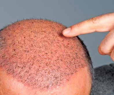 Do Hair Transplants Have Side Effects?