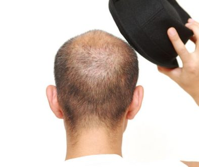 Does Wearing Hats Cause Hair Loss?