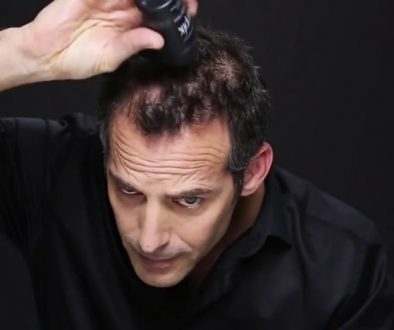 Can I Use Toppik After A Hair Transplant?