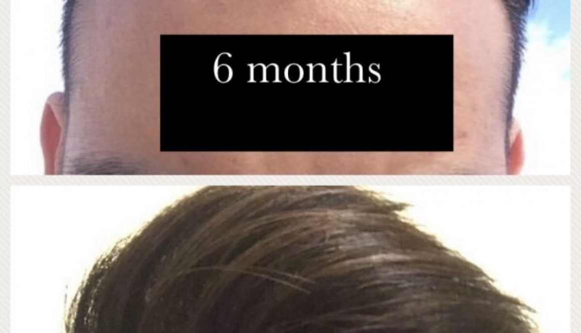 6 Months Post-Op Not Happy With the Density Of  My Hair Transplant