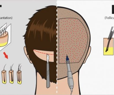 Should I Have An FUE Hair Transplant Or Strip Hair Transplant?