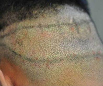 Is FUE A Scarless Hair Transplant Procedure?