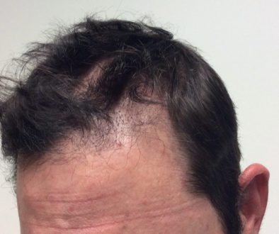 Does Getting A Hair Transplant With Thinning Hair Cause Shock Loss?