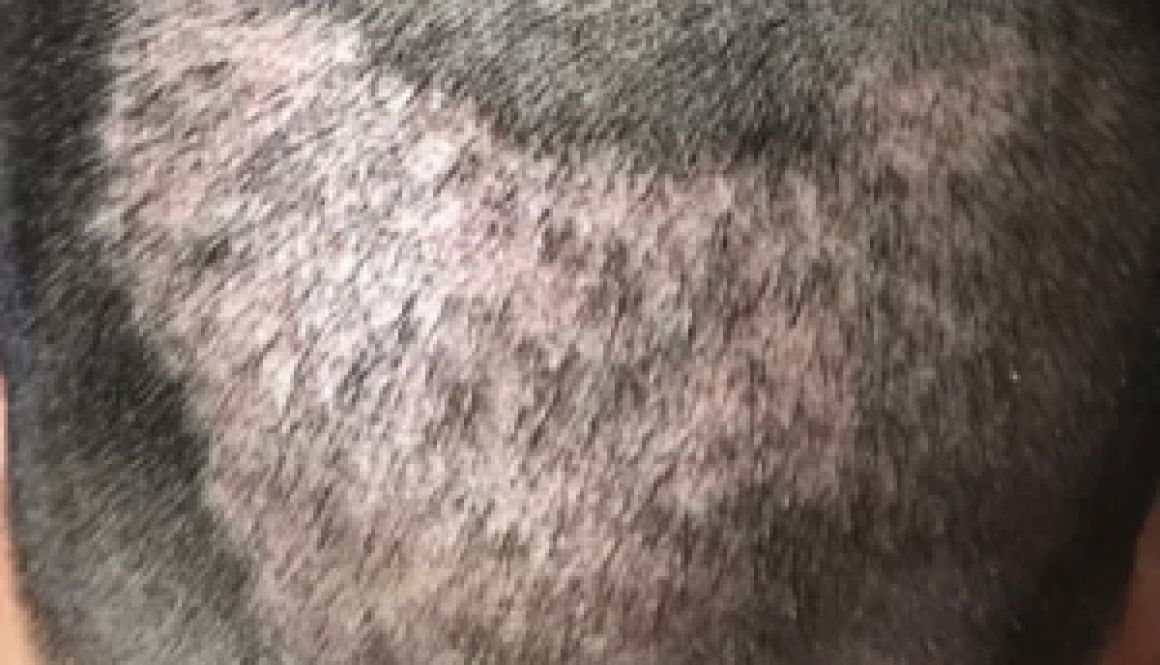 Can I Have A Hair Transplant With A Damaged Donor