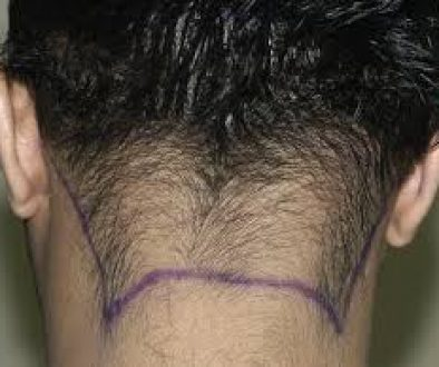 Can I Have A Hair Transplant With Retrograde Alopecia?