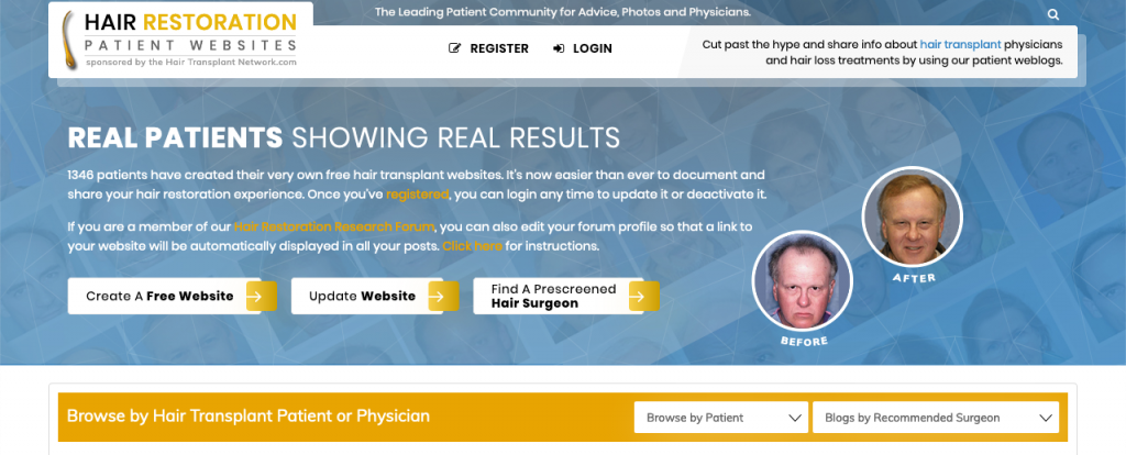 Create a Free Hair Loss Website From Your Mobile Phone