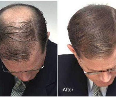 How Can Hair Fibers Improve My Hair Transplant?