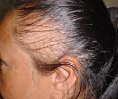 Help! I Have Traction Alopecia