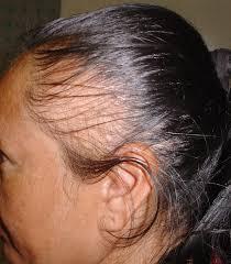 Help! I Have Traction Alopecia