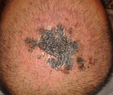 Are Hair Transplants Dangerous?
