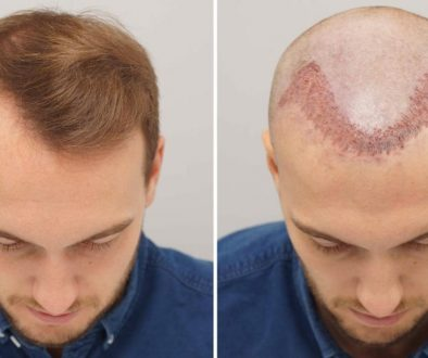 Do I Have To Use ATP Spray After A Hair Transplant?