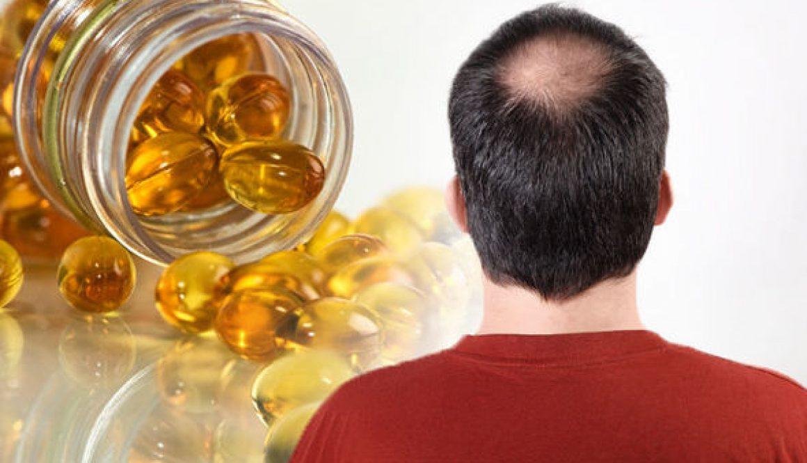 Do Hair Growth Supplements Work?