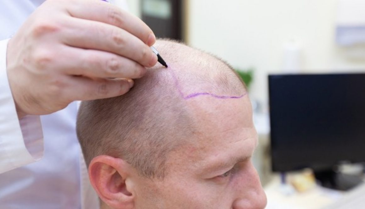 What's Changed In Field of Hair Restoration In The Last Ten Years? Dr. Charles Answers