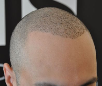 Can SMP Be Combined With A Hair Transplant? Dr. Charles Answers