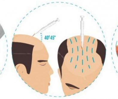 What Is Direct Hair Transplantation (DHT)? Dr. Bansal and Dr. Sethi Answer