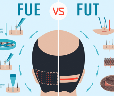FUE VS FUT Hair Transplant Prices and Differences?