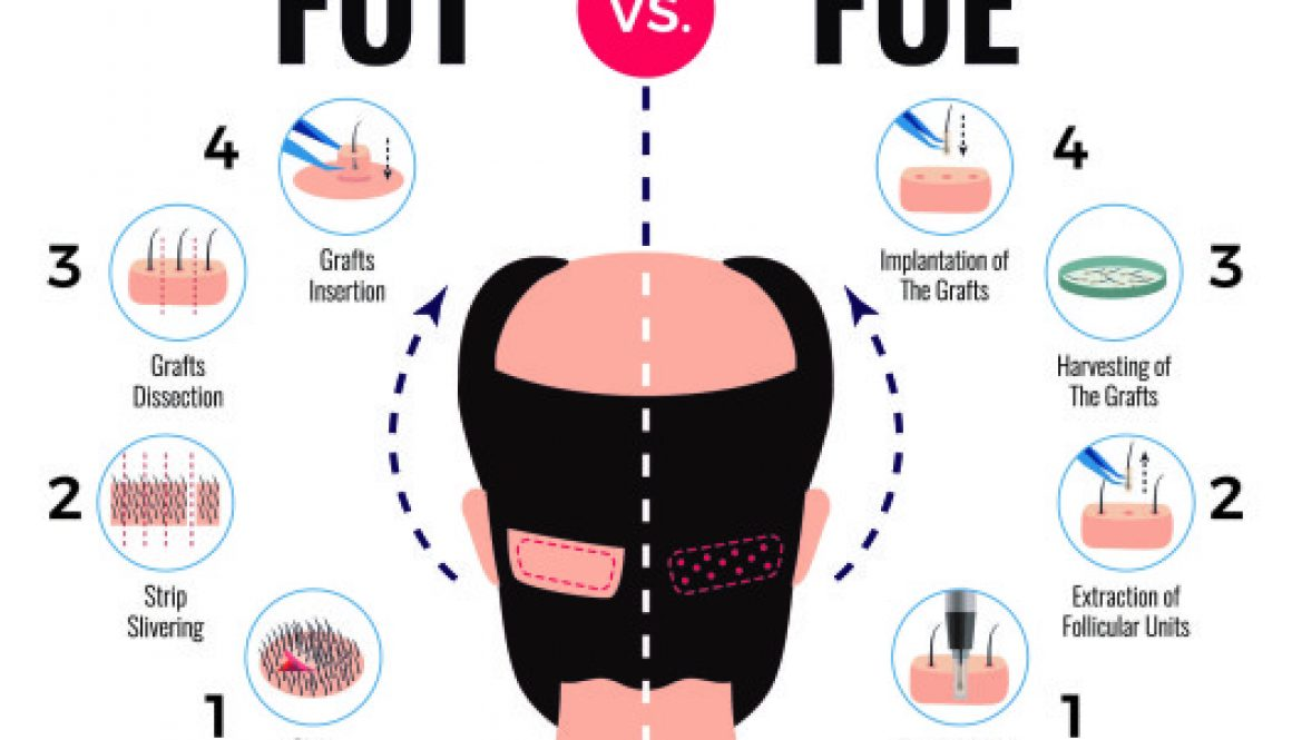 What Are The Advantages of FUE and FUT? Dr. Charles Answers