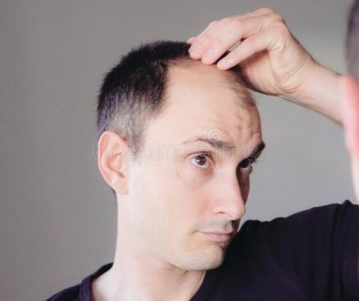 Five Months and No Growth Did My Hair Transplant Fail?