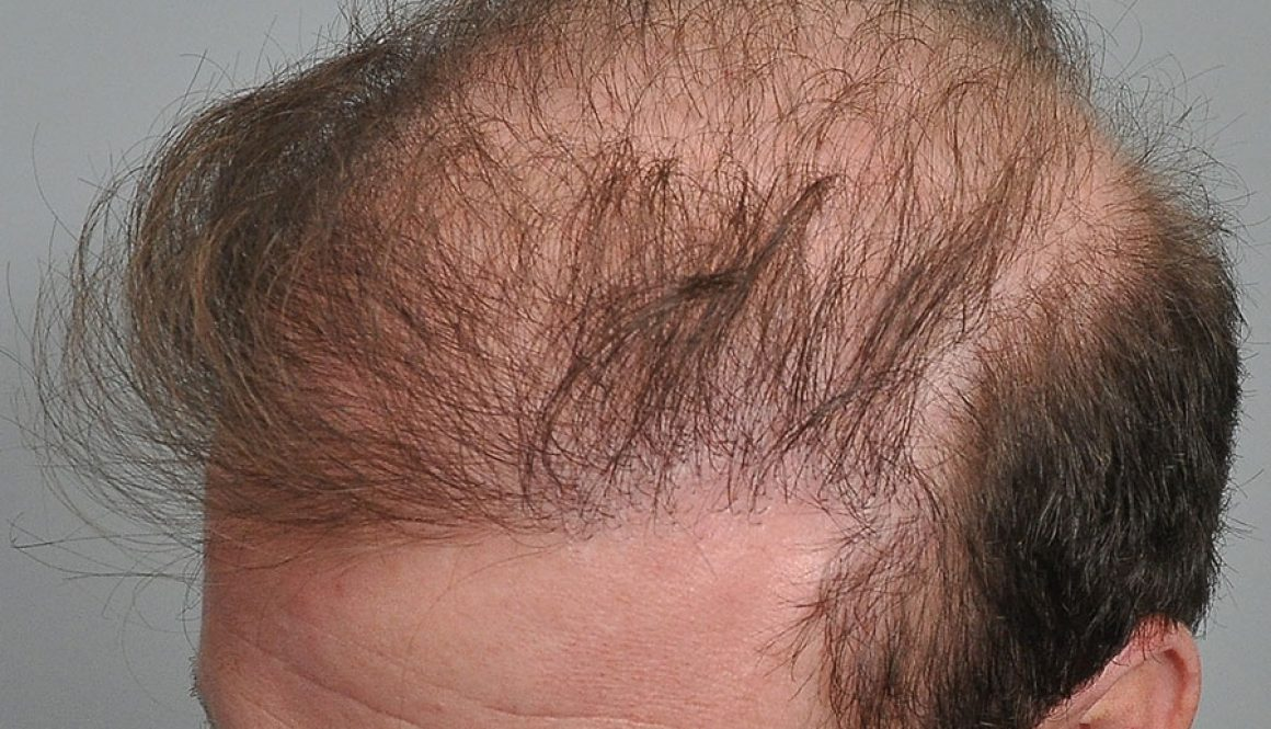 Are There Any Conditions That Can Affect Hair Transplant Growth?