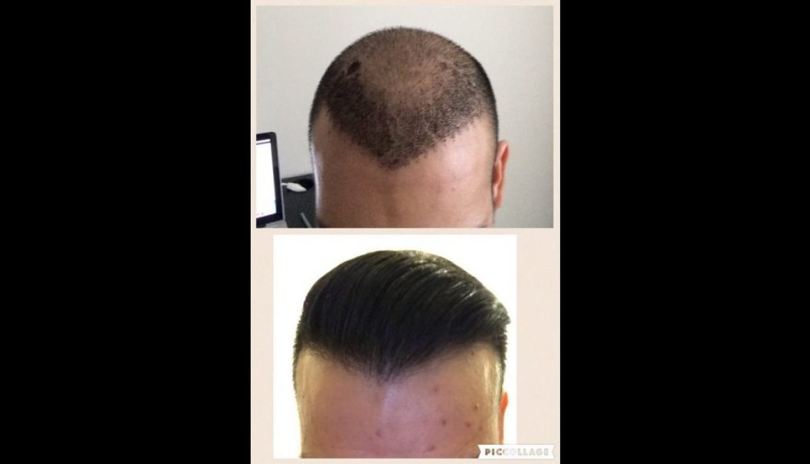 How Many Grafts Do I Need To Get A Dense Hair Transplant?
