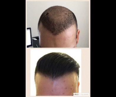 How Many Grafts Do I Need To Get A Dense Hair Transplant?