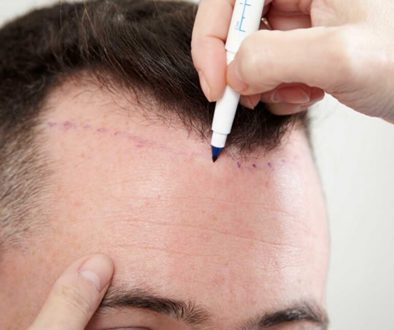 Can I have a Hair Transplant to Lower My Hairline- Lower Than Nature?