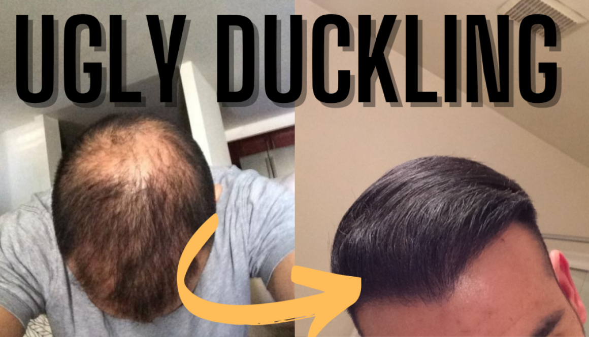 What Is The Hair Transplant Ugly Duckling Phase?