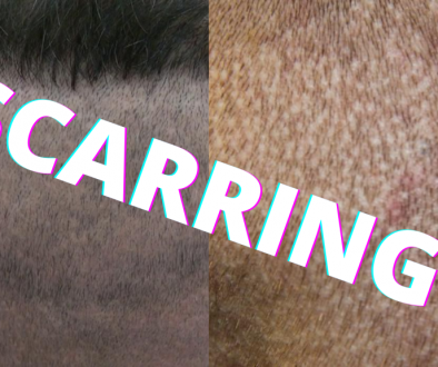 Does FUE Hair Transplant Leave Scars?
