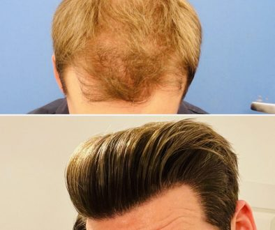 Is One Hair Transplant Enough Over A Lifetime?