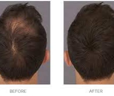 When Can You Use Toppik After A Hair Transplant?