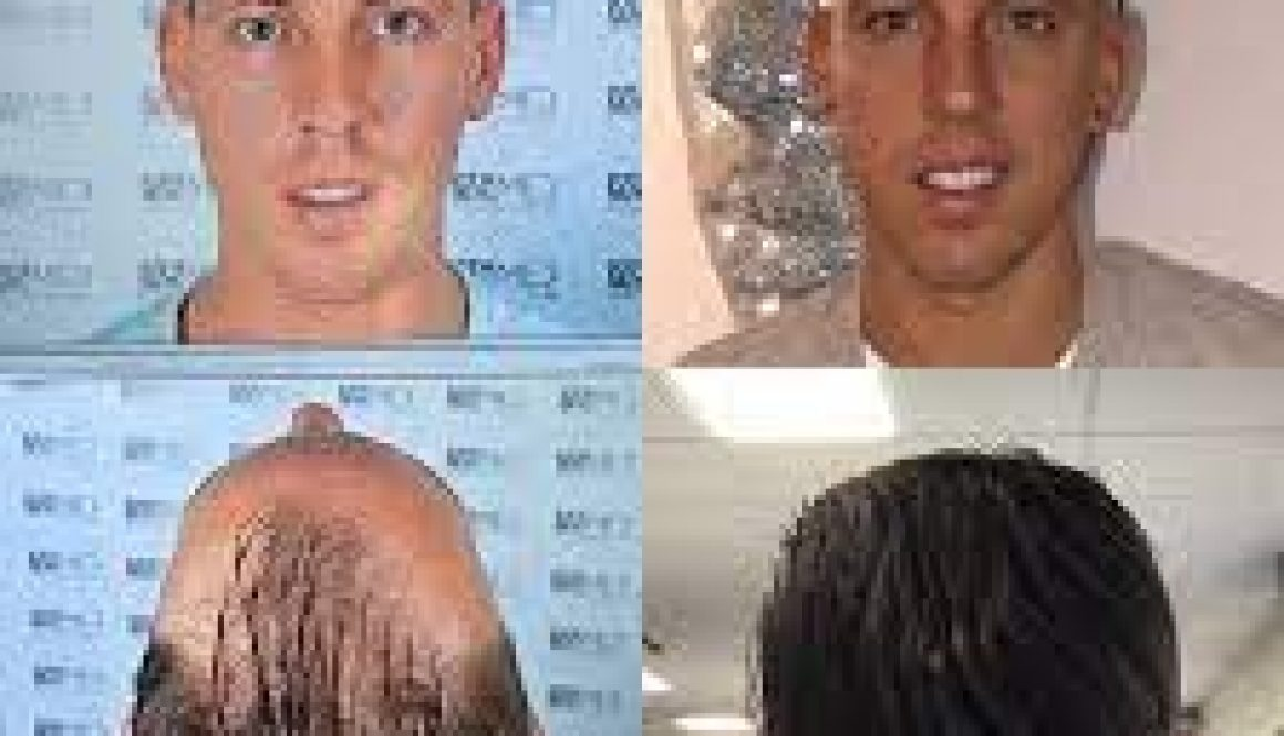 What Is The Success Rate of Hair Transplants?