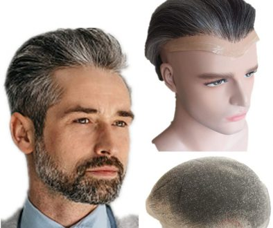 Should I Get A Hair Transplant or Hair System?